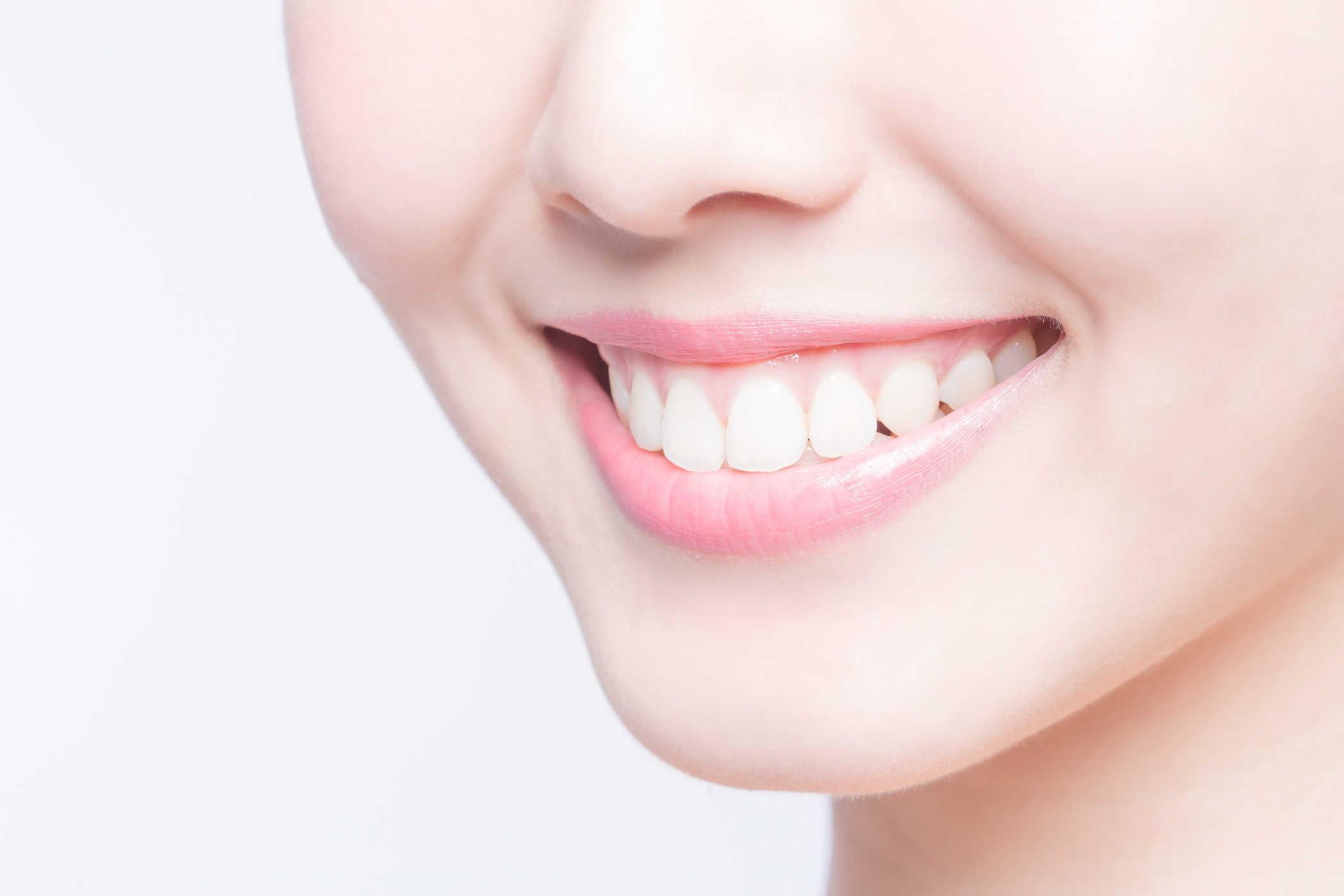 Ngăn ngừa cao răng để có nụ cười trắng sáng