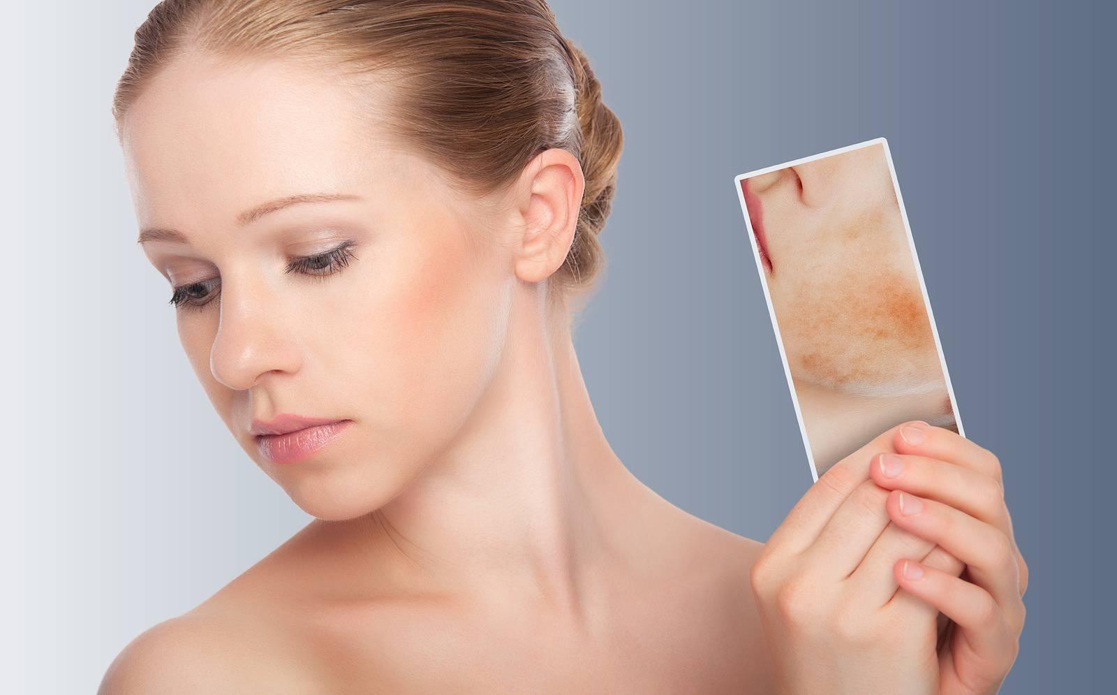 Cách chăm sóc da bị dị ứng