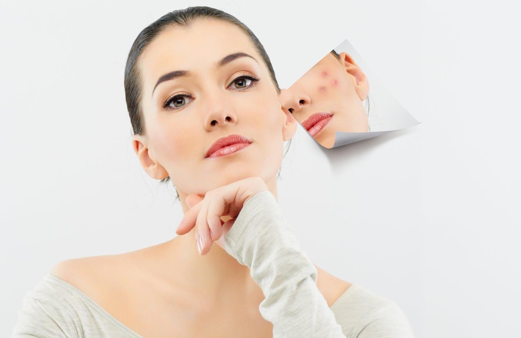 Những điều cần lưu ý khi chăm sóc da bị mụn