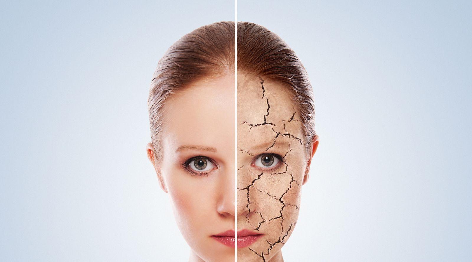 Dấu hiệu da bị thiếu nước và cách khắc phục